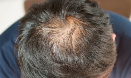 7 rimedi contro la caduta dei capelli nel 2020